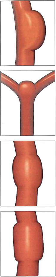 typy tetniakow