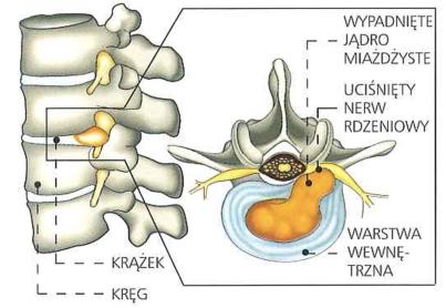 ucisniety nerw